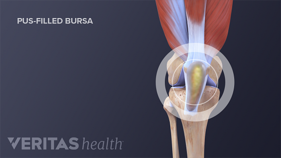 Medical illustration of infected knee bursa filled with pus