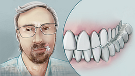 Person grinding teeth a common cause of Temporomandibular Joint (TMJ) Disorders
