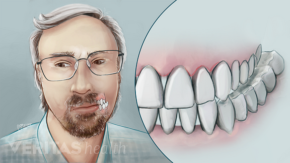 Illustration of person grinding teeth a common cause of Temporomandibular Joint (TMJ) Disorders