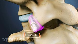 Capsule full of synovial fluid highlighted in the facet joint