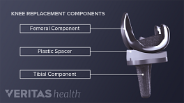 Front and side view of the components of a knee replacement. The following parts are labeled: Femoral component, plastic spacer, tibial component