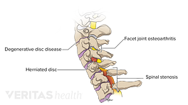 Medical illustration of common problems affecting the cervical spine. Degenerative disc disease, facet joint osteoarthritis, herniated disc, and spinal stenosis are highlighted.