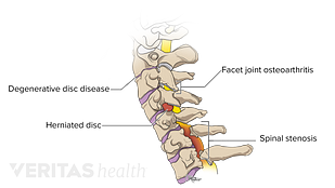 Medical illustration of common problems affecting the cervical spine