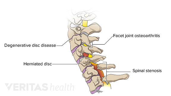 Medical illustration of the cervical spine labeled with common conditions that cause neck stiffness
