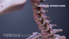 Cervical Spondylosis with Myelopathy Animation