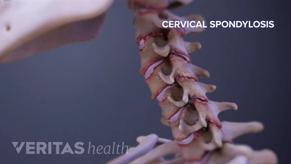 Degenerative Discs showing Cervical Spondylosis with Myelopathy