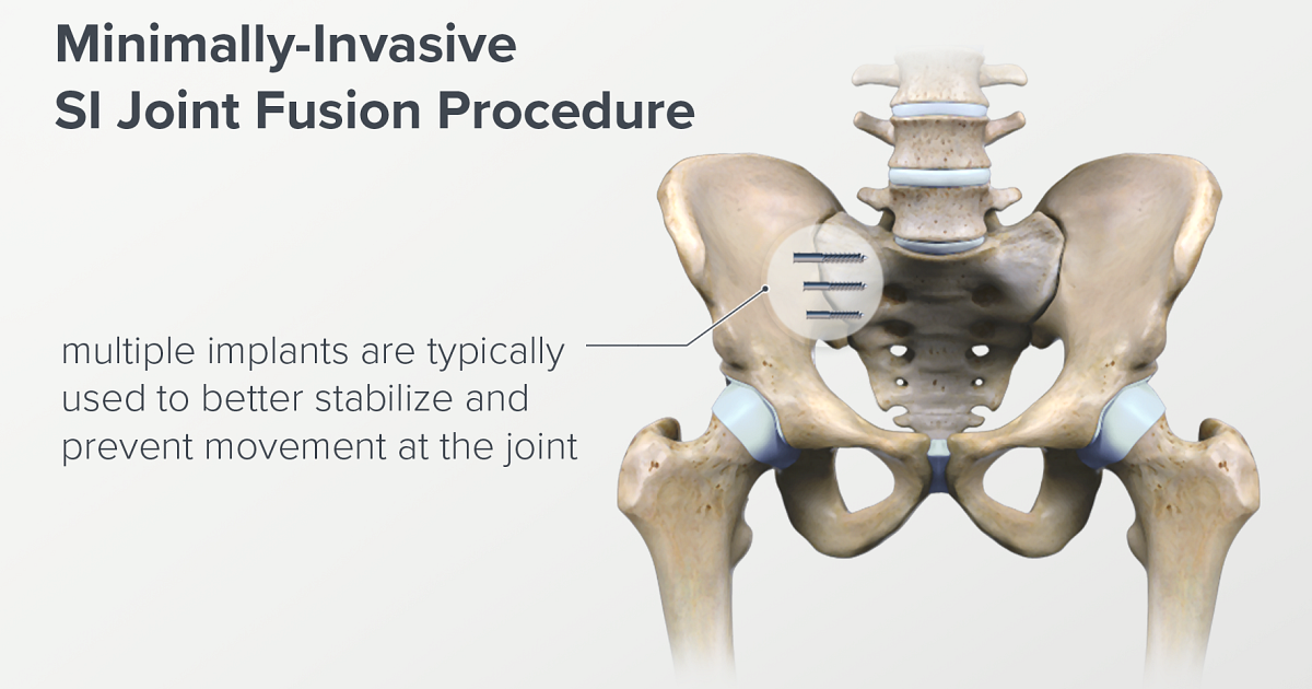 How Sacroiliac Joint Fusion is Performed