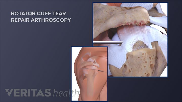 Different Types of Rotator Cuff Surgery