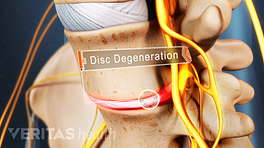 Anterior view of the lumbar spine showing disc degeneration.