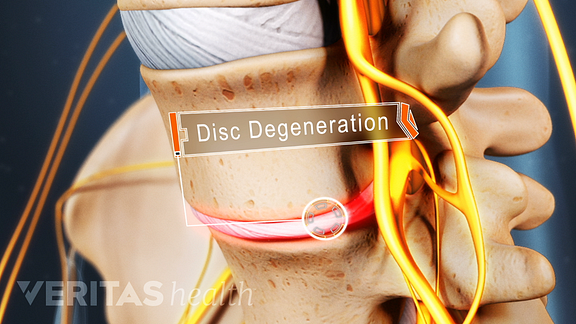Disc degeneration in the lumbar spine.