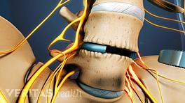 Anterior view of the ALIF procedure in the lumbar spine.