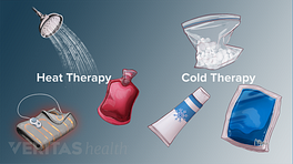 Medical illustration of the different types of heat and cold therapies