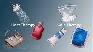 Different types of heat and cold therapies including hot water bottle, hot shower, heating pad, bag of ice, ice pack, cooling cream