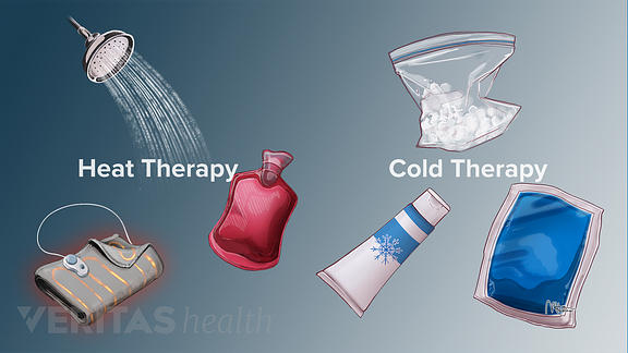 Medical illustration showing different heat and cold therapy options including ice pack, heating pad, hot water bottle and shower
