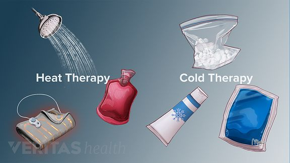 Medical illustration of the different options in heat and cold therapy