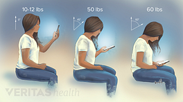 Views of posture in the neck when using a phone showing increase in pressure as you bend your neck.