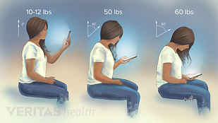 Medical illustration of the the correct posture to have when using a phone