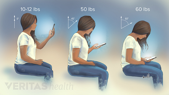 Illustration showing how three different head positions put strain on the neck when looking down at a phone