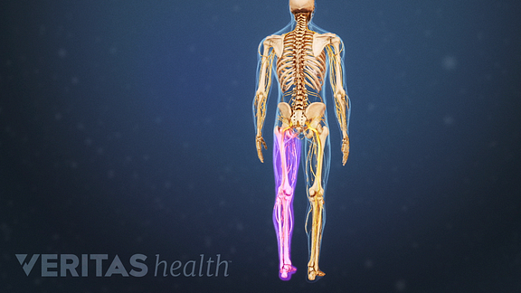 sciatic pain on one side of the body