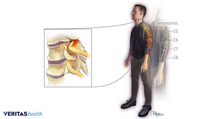 Illustration of areas affected by cervical nerve root causing radiculopathy