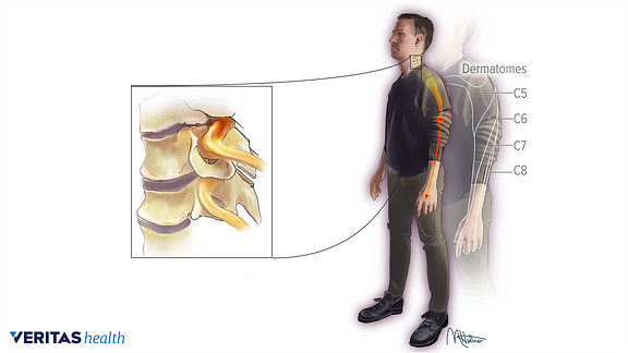 Medical Illustration Of The Pain Areas Of Different Compressed Nerve Roots In The Cervical Spine