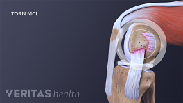 Profile view of an MCL tear in the knee joint.