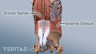 Medical illustration of oblique and erector spinae muscles