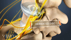 Posterior view labeling a herniated disc in the lumbar spine.