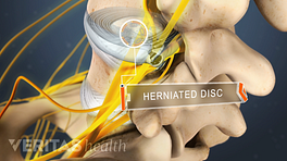 Superior, posterior view of a herniated disc in the lumbar spine.