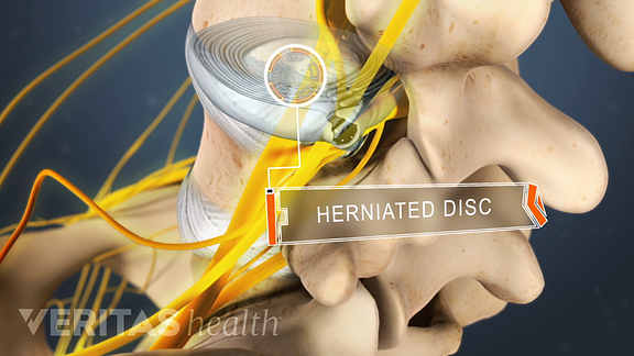 nerve root compression from a lumbar herniated disc