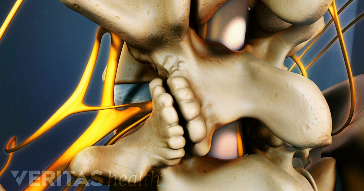 Living with Lumbar Spinal Stenosis