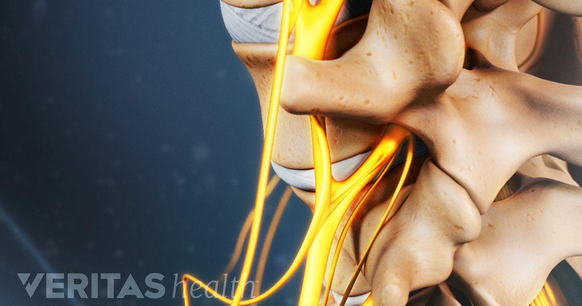 que es el nervio ciatico sintomas