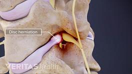 Medical illustration showing a cervical disc herniation