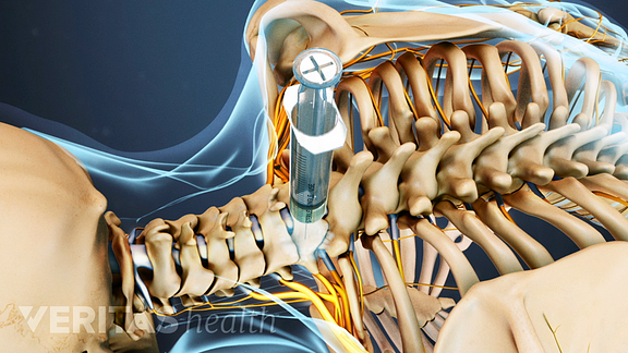 Posterior view of the upper back with a cervical injection in the cervical spine.