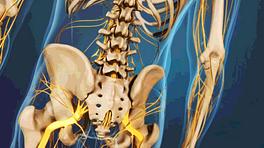 Medical illustration of the lower spine and hips, showing bones and nerves