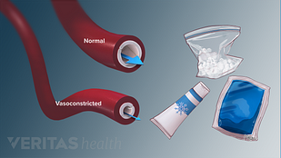 Illustration of the types of cold therapy and vasoconstricted blood vessels