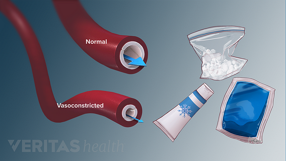 Medical illustration showing normal and vasoconstrcited blood vessels as a response to different forms of cold therapy