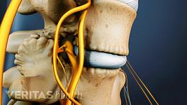 Medical illustration of two vertebrae showing bone spurs on the facet joints