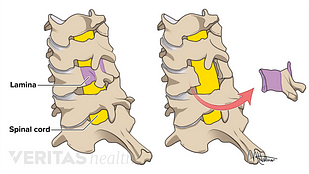 medical illustration of a posterior cervical laminectomy
