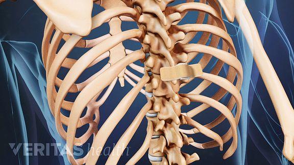 vertebroplasty-bandage