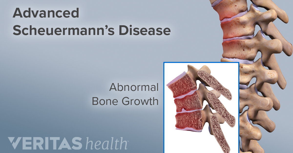 Scheuermann's Disease of the Thoracic and Lumbar Spine