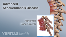 Advanced Scheuermann's Disease highlighting the abnormal bone growth