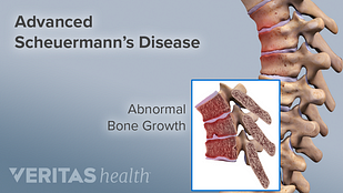 Advanced Scheuermann's Disease highlighting the abnormal bone growth