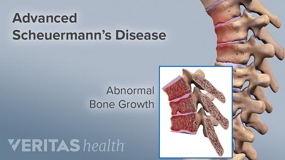 Adult Scheuermann's Disease