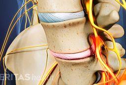 Lumbar Degenerative Disc Disease Symptoms