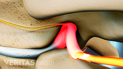 Nerve impingement from a herniated disc in the thoracic spine