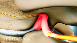 Thoracic Herniated Disc Nerve Impingement