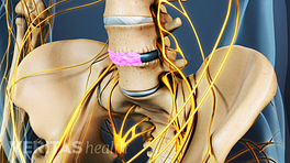 Anterior view of the lumbar spine showing healing over the bone graft inserted for a spinal fusion.