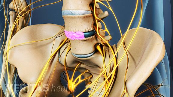 Anterior view of pelvis showing healing bone graft between L4 and L5.