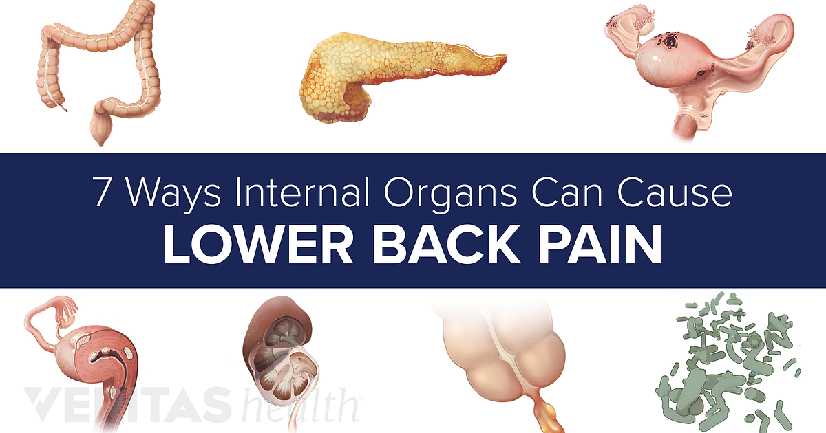 7 Ways Internal Organs Can Cause Lower Back Pain Slideshow